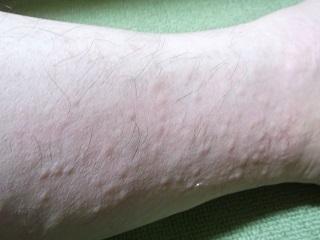 左足首の排毒現象