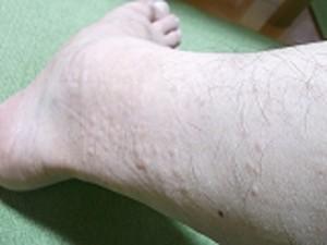 右足の排毒