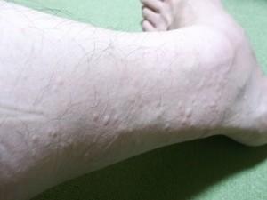 左足の排毒